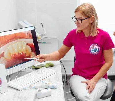 Higienizacja zębów Tychy Strefa Zęba